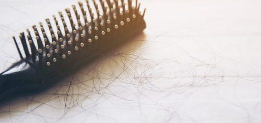Khám rụng tóc tại bệnh viện da liễu